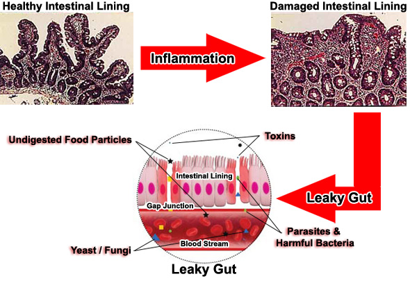 digestive enzymes cure leaky gut syndrome